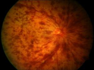 Opacifierea retinei neinflamatoare. Despre centru