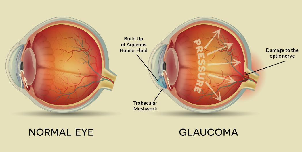restabilirea vederii în glaucom Consumul de dulciuri afectează vederea