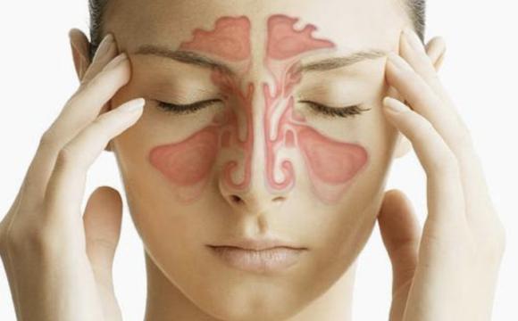 Sindrom de durere miofasciala