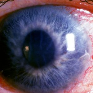 cum să îmbunătățim glaucomul vizual