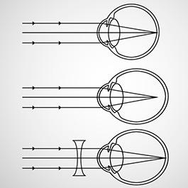 cum se corectează miopia ce înseamnă vederea plus una