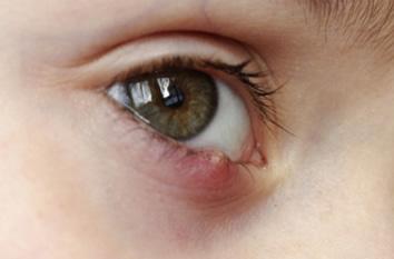 vederea a căzut la ochi roșii