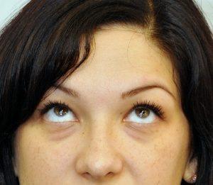 îmbunătățirea antrenamentului vizual al ochilor