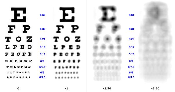 2,5 miopie de vedere