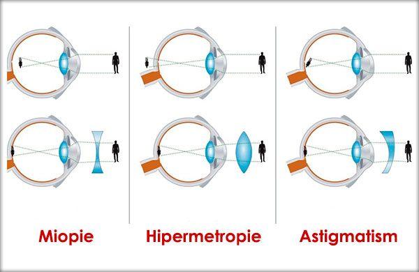 diagnostic de vedere astigmatism