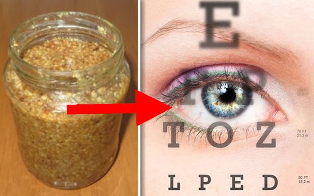 mierea îmbunătățește vederea miopie progresivă complicată