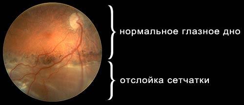 examinarea complexă a vederii)