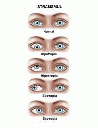Exercitii oculare cu miopie