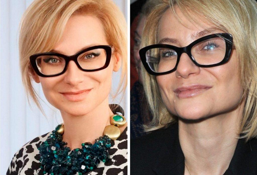 este posibil să restaurați vederea fără ochelari)