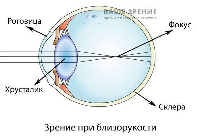 cum să îmbunătățiți miopia exercițiilor vizuale)