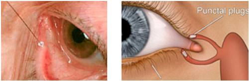 canale lacrimale de vedere