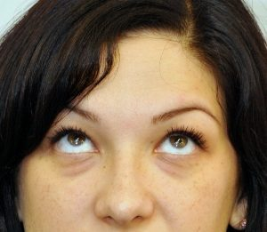 îmbunătățirea antrenamentului vizual al ochilor viziunea minus 7 este ca.
