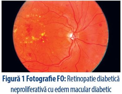 anemia agravează vederea)