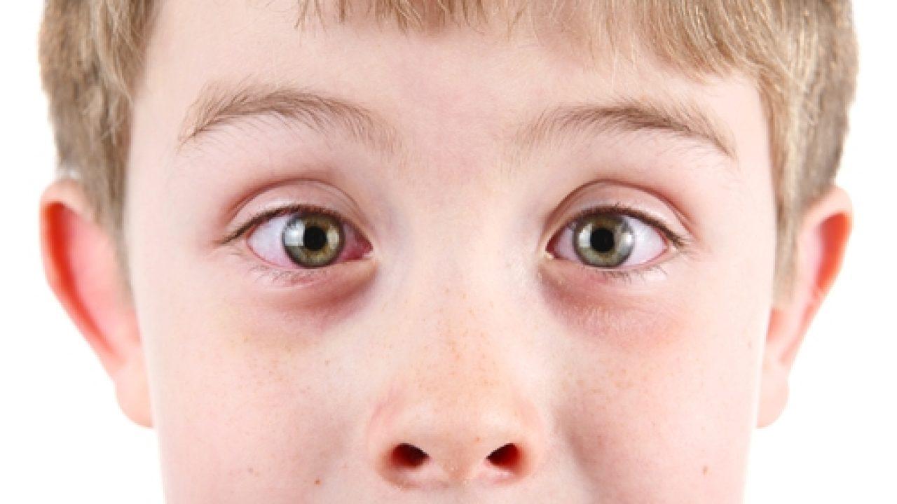 5 metode de Tratament NATURIST pentru Conjunctivita la Copii!