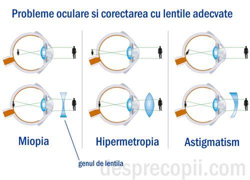 hipermetropie, congenitală și dobândită