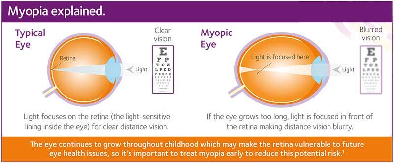 medicament eficient pentru tratamentul miopiei)