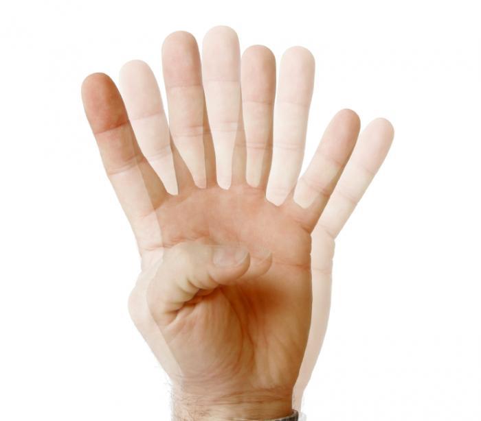 Myasthenia Gravis (ocular) - Ce trebuie să știți - Sănătate -
