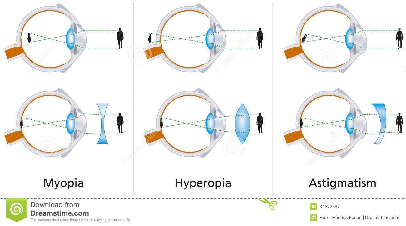 miopic astigmatism)
