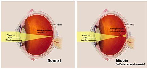 ochiul exercită miopie hipermetropie