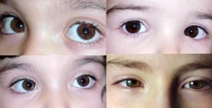 refacerea vederii cu pupile dilatate)