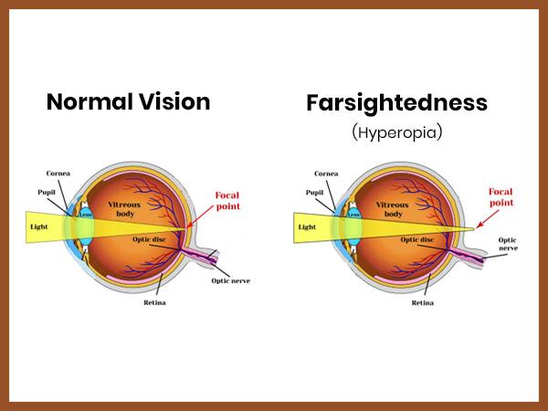 Hiperopia miopiei, care este diferența dintre miopie și hiperopie