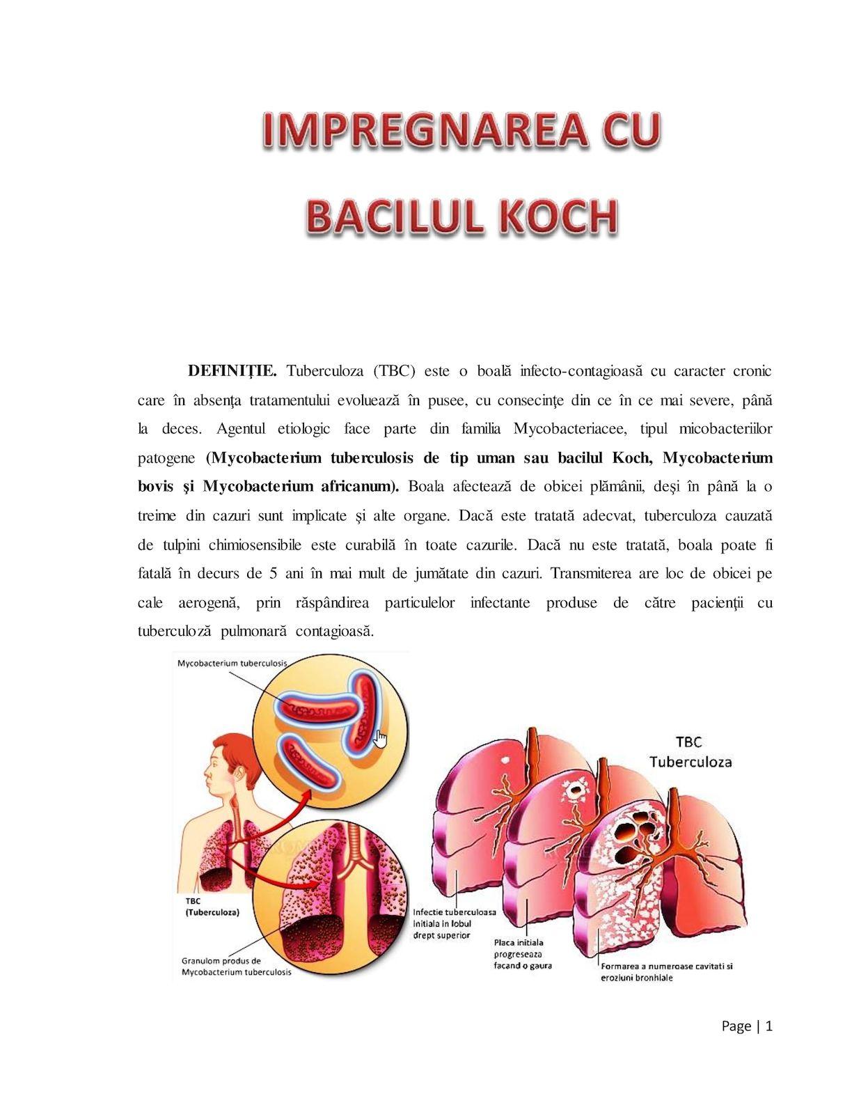 suspectată de tuberculoză pulmonară
