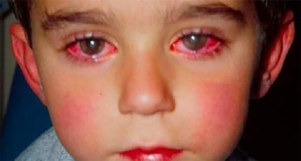 Lesinul – cauze, prim ajutor si metode de prevenire