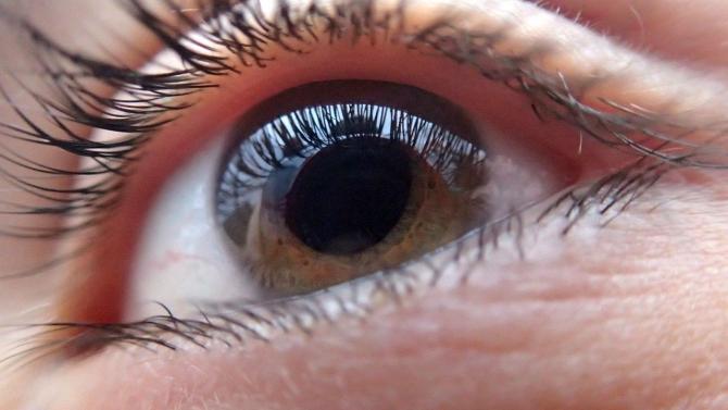 zvâcniri ale ochilor; vedere deteriorată)